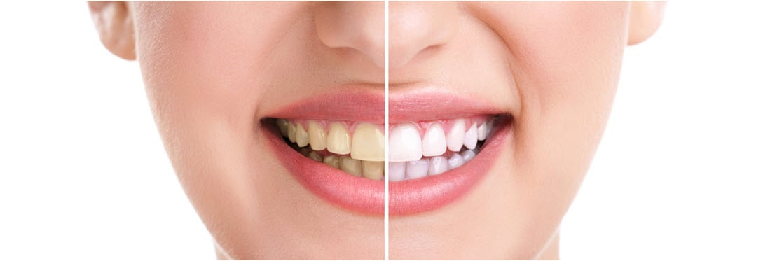 TeethWhitening_BeforeAfter